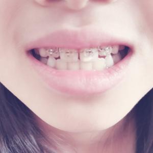 【歯科矯正】トラブル発生!自宅と近いクリニックで助かりました