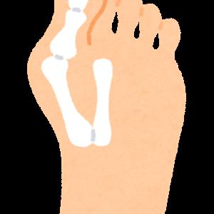 外反母趾の原因と予防法とは?