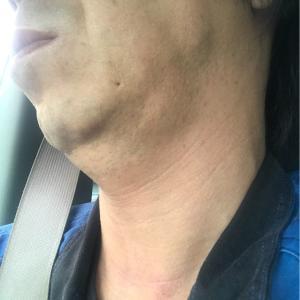 最近の術後の体調や顎下腺と耳下腺の状態
