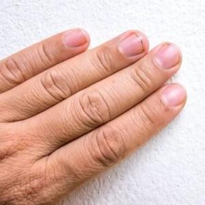 万引き少年の指4本を切断 10ヶ月の服役に加えイラン最高裁が刑執行を指示
