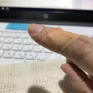 右手人差し指負傷、夜のガラス窓で保護色してるジュライ