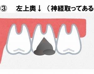 銀歯2本除去後の経過観察 1日目