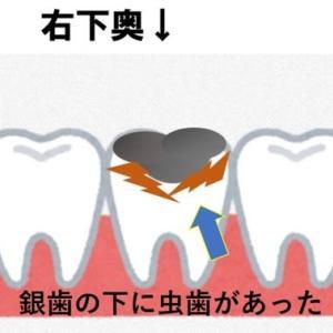 人間ドッグ行くなら歯医者行け。