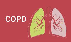 COPD(慢性閉塞性肺疾患)患者の適切な栄養管理とは