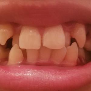 左側2本いっきに抜歯!