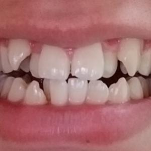 歯列矯正はじめます