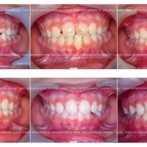 できるだけ歯を抜かない矯正歯科治療 album 118