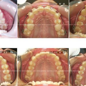 できるだけ歯を抜かない矯正歯科治療 album 147