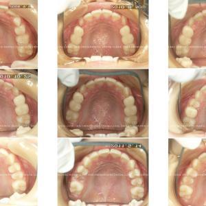 できるだけ歯を抜かない矯正歯科治療 album 148