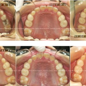 できるだけ歯を抜かない矯正歯科治療 album 155