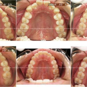 できるだけ歯を抜かない矯正歯科治療 album 156