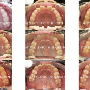 できるだけ歯を抜かない矯正歯科治療 album 164