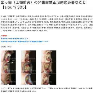 出っ歯(上顎前突)の非抜歯矯正治療に必要なこと 【album 305】
