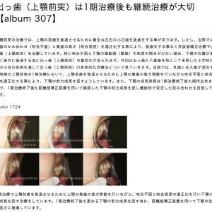 出っ歯(上顎前突)は1期治療後も継続治療が大切 【album 307】