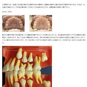 小児矯正で簡単に八重歯を改善する方法【album 328】