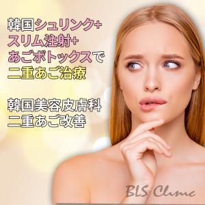 韓国シュリンク+スリム注射+あごボトックスで二重あご治療、韓国美容皮膚科の二重あご改善