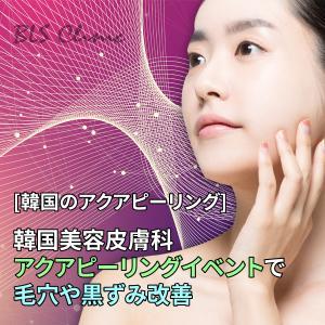 [韓国のアクアピーリング] 韓国美容皮膚科のアクアピーリングイベントで毛穴や黒ずみ改善
