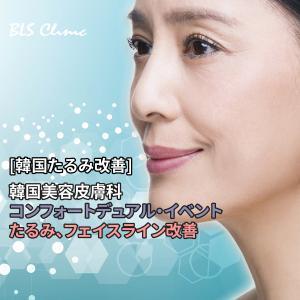 [韓国たるみ改善] 韓国美容皮膚科のコンフォートデュアル・イベントでたるみ、フェイスライン改善