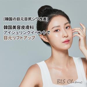 [韓国の目元目尻シワ改善] 韓国美容皮膚科のアイシュリンクイベントで目元リフトアップ!
