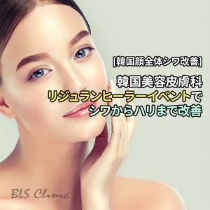 [韓国顔全体シワ改善] 韓国美容皮膚科のリジュランヒーラーイベントでシワからハリまで改善