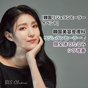 [韓国リジュランヒーラーイベント] 韓国美容皮膚科のリジュランヒーラーで顔全体のたるみ・シワ改善