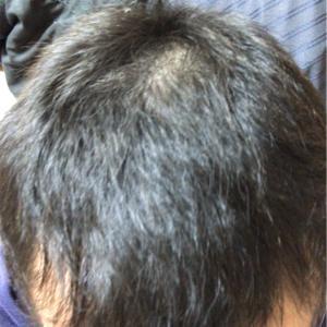 【抗がん剤治療から約4ヶ月。】悪性リンパ腫。脱毛してからのその後