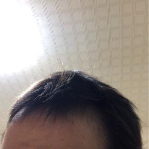 脱毛経験!抗がん剤治療が終わって約半年の髪の毛