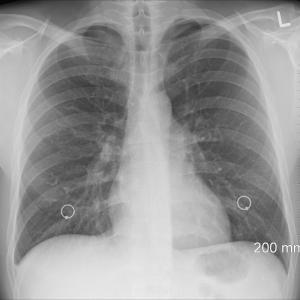 咳が止まらないのにレントゲンでは異常なし!考えられる病気や対策とは?