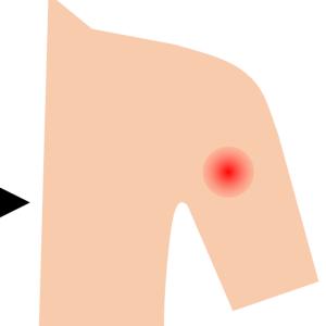 [お知らせ]ブログ別館記事更新:コロナワクチン接種後の反応[1回目]