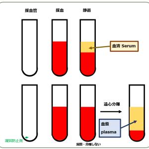 第64回日本糖尿病学会の感想[8] HbA1cの測定誤差