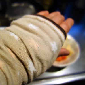 左手親指付け根の腱鞘炎が