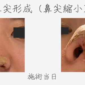 鼻尖形成(鼻尖縮小)施術当日の腫れ