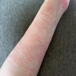 リスカ跡 傷跡修正治療フラクショナルレーザー5回目ダウンタイム1日 軟膏がすごい件。