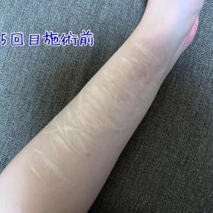 リスカ跡 傷跡修正治療 5回目照射から25日ダウンタイム終えてみて。
