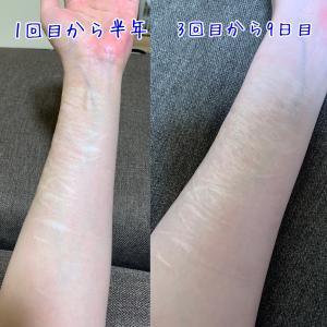リストカット傷痕治療 フラクショナルレーザー3回目 ダウンタイム9日目