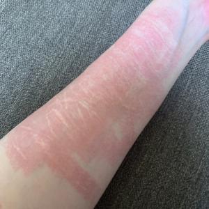 リスカ跡 傷痕治療 フラクショナルレーザー4回目&ダウンタイム