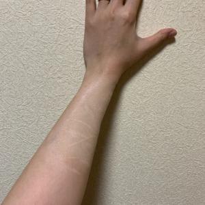 夏場で治療をお休み中。肌かくしーとで半袖生活。