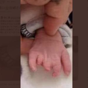 【悲報・閲覧注意】妊婦さんは絶対に打っちゃダメ!!