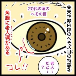 【緑内障】みんなの目にはある?黒目の周りに『老人環』
