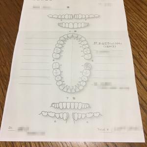 大臼歯の治療 / 型取りと噛み合わせ