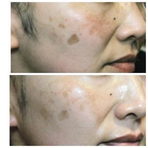 お肌のトラブルはほとんどが紫外線‼️恐怖の紫外線!