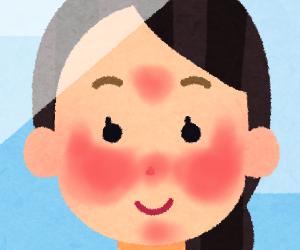 """【脂漏性皮膚炎】症状が一番ひどかった頃、私の顔は目の周り以外見事に""""真っ赤""""でした(;ω;)"""