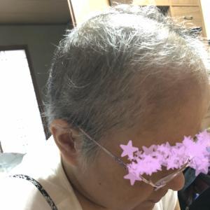 その後の毛事情