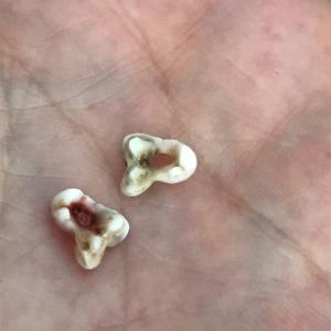 犬の乳歯が2本抜けました。後臼歯という部分のようです。