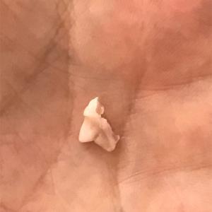 またまた犬の乳歯が抜けました。これはどこの歯?