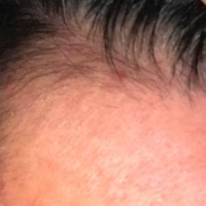 生え際ニキビで薄毛になる【頭皮の環境を改善しよう】