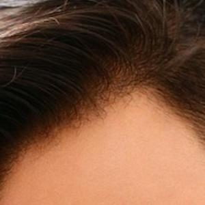 自毛植毛とは費用はどの位かかるのか【安いのは海外?】