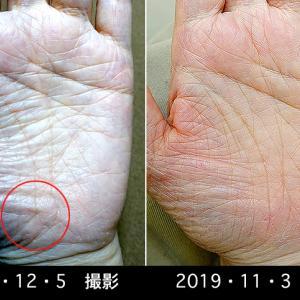 手相障害線除去施術者のその後を追跡調査、そして手相画像