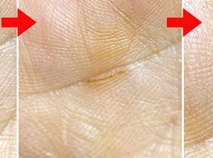手相を変えるための障害線除去技術の確立