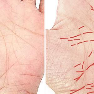 手相の障害線を除去しない限り占い結果は悪いまま変わらない